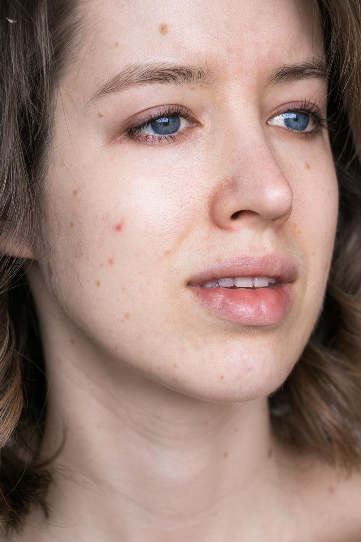 Hautpflege vorher nachher vitabrid c12