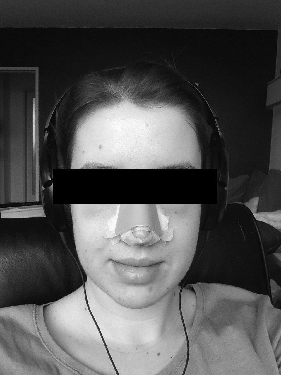 Nasenkorrektur Erfahrung
