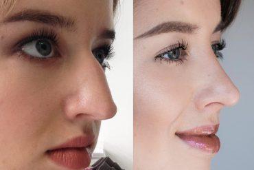 Meine Nasenkorrektur Erfahrung